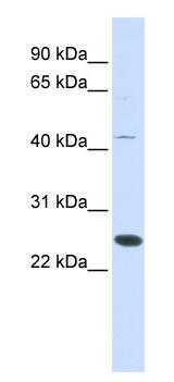 Western blot - FAM119A antibody (ab84523)