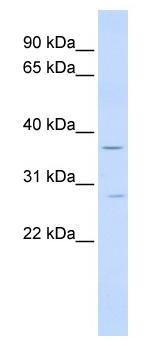 Western blot - IFN gamma Receptor beta antibody (ab84524)