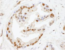 Immunohistochemistry (Formalin/PFA-fixed paraffin-embedded sections) - CHD8 antibody (ab84527)