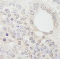 Immunohistochemistry (Formalin/PFA-fixed paraffin-embedded sections) - cleavage stimulation factor antibody (ab84529)