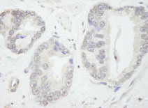 Immunohistochemistry (Formalin/PFA-fixed paraffin-embedded sections) - TFIIIC / GTF3C1 antibody (ab84534)