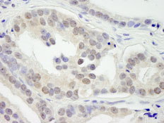 Immunohistochemistry (Formalin/PFA-fixed paraffin-embedded sections) - KDM3B / JMJD1B antibody (ab84541)