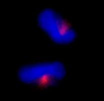 Immunocytochemistry/ Immunofluorescence - CEP170 antibody (ab84545)