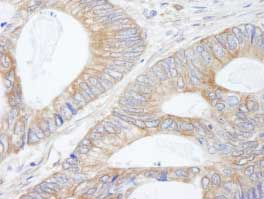 Immunohistochemistry (Formalin/PFA-fixed paraffin-embedded sections) - p90 Autoantigen  antibody (ab84547)
