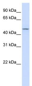 Western blot - CHST6 antibody (ab84555)