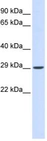 Western blot - VTI1A antibody (ab84556)