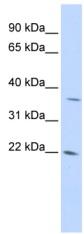 Western blot - DDIT4L antibody (ab84562)