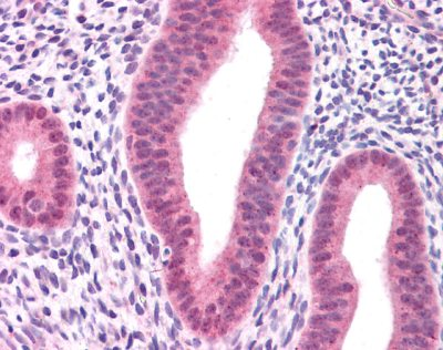 Immunohistochemistry (Formalin/PFA-fixed paraffin-embedded sections) - Anti-KRAS+HRAS+NRAS antibody (ab84573)