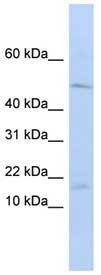 Western blot - VPREB1 antibody (ab84581)