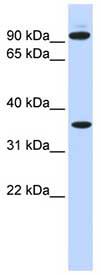 Western blot - Ext2 antibody (ab84582)