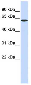 Western blot - SPTLC1 antibody (ab84585)