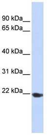 Western blot - TMED1 antibody (ab84586)