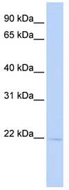 Western blot - RER1 antibody (ab84587)