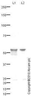 Western blot - Cytochrome P450 2E1 antibody (ab84598)