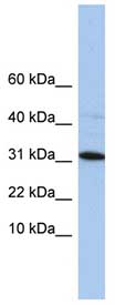 Western blot - C9orf153 antibody (ab84614)