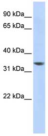 Western blot - NHLRC3 antibody (ab84616)
