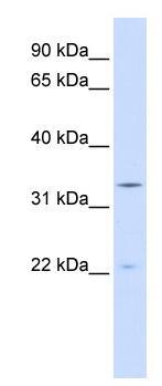 Western blot - INMT antibody (ab84619)