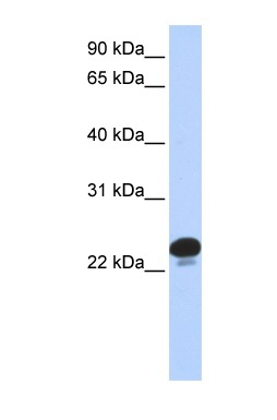 Western blot - calcyphosine antibody (ab84629)