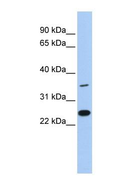 Western blot - LYVE1 antibody (ab84630)