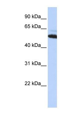 Western blot - ATE1 antibody (ab84636)