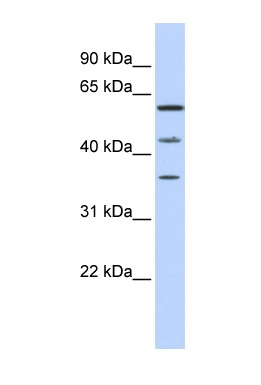Western blot - PHF23 antibody (ab84637)