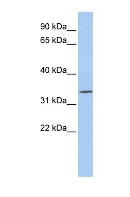 Western blot - PITX1 antibody (ab84638)