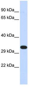 Western blot - KIF25 antibody (ab84643)