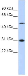 Western blot - ING3 antibody (ab84645)