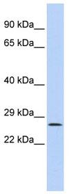 Western blot - Ocular development associated gene antibody (ab84649)