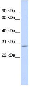 Western blot - ECHS1 antibody (ab84650)