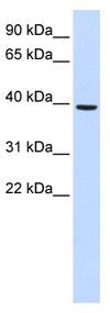 Western blot - MOGAT2 antibody (ab84656)