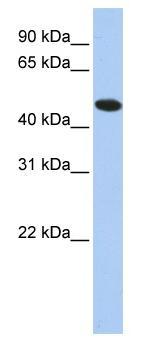 Western blot - TXNDC5 antibody (ab84665)