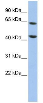 Western blot - FOXJ3 antibody (ab84668)