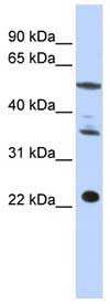 Western blot - CENPM antibody (ab84669)