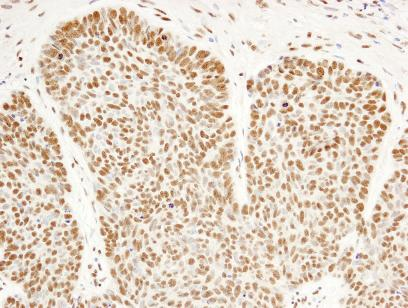 Immunohistochemistry (Formalin/PFA-fixed paraffin-embedded sections) - FIP1L1 antibody (ab84670)