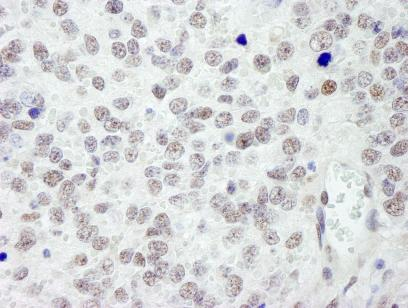 Immunohistochemistry (Formalin/PFA-fixed paraffin-embedded sections) - RanBP3 antibody (ab84672)