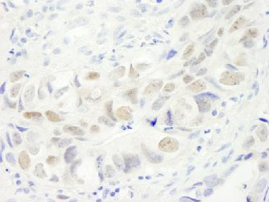 Immunohistochemistry (Formalin/PFA-fixed paraffin-embedded sections) - Anillin antibody (ab84676)
