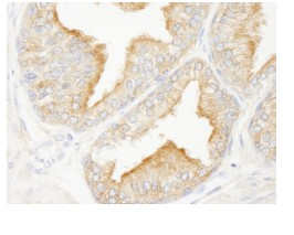 Immunohistochemistry (Formalin/PFA-fixed paraffin-embedded sections) - ANKRD25 antibody (ab84679)