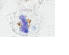 Immunohistochemistry (Formalin/PFA-fixed paraffin-embedded sections) - NuMA antibody (ab84680)