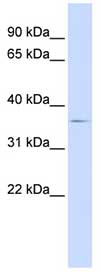 Western blot - TRIB2 antibody (ab84683)