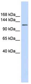 Western blot - SLC24A1 antibody (ab84685)