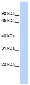 Western blot - TRIM56 antibody (ab84687)