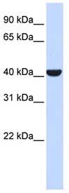 Western blot - SPFH2 antibody (ab84691)