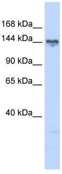 Western blot - TBC1D1 antibody (ab84692)