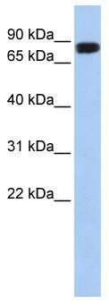 Western blot - AARE antibody (ab84694)