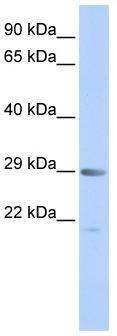 Western blot - SEN1 antibody (ab84703)