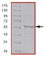 SDS-PAGE - Vimentin protein (His tag) (ab84704)