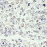 Immunohistochemistry (Formalin/PFA-fixed paraffin-embedded sections) - KPNA3 antibody (ab84706)