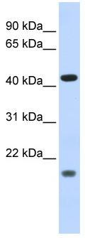 Western blot - ING3 antibody (ab84707)