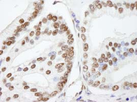Immunohistochemistry (Formalin/PFA-fixed paraffin-embedded sections) - NUCKS1 antibody (ab84710)